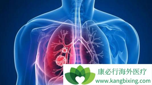 癌症晚期还能活多久_肺癌晚期还能活多久是患者与家属共同关心的【康必行海外医疗】